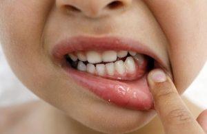 ヤブ歯科医