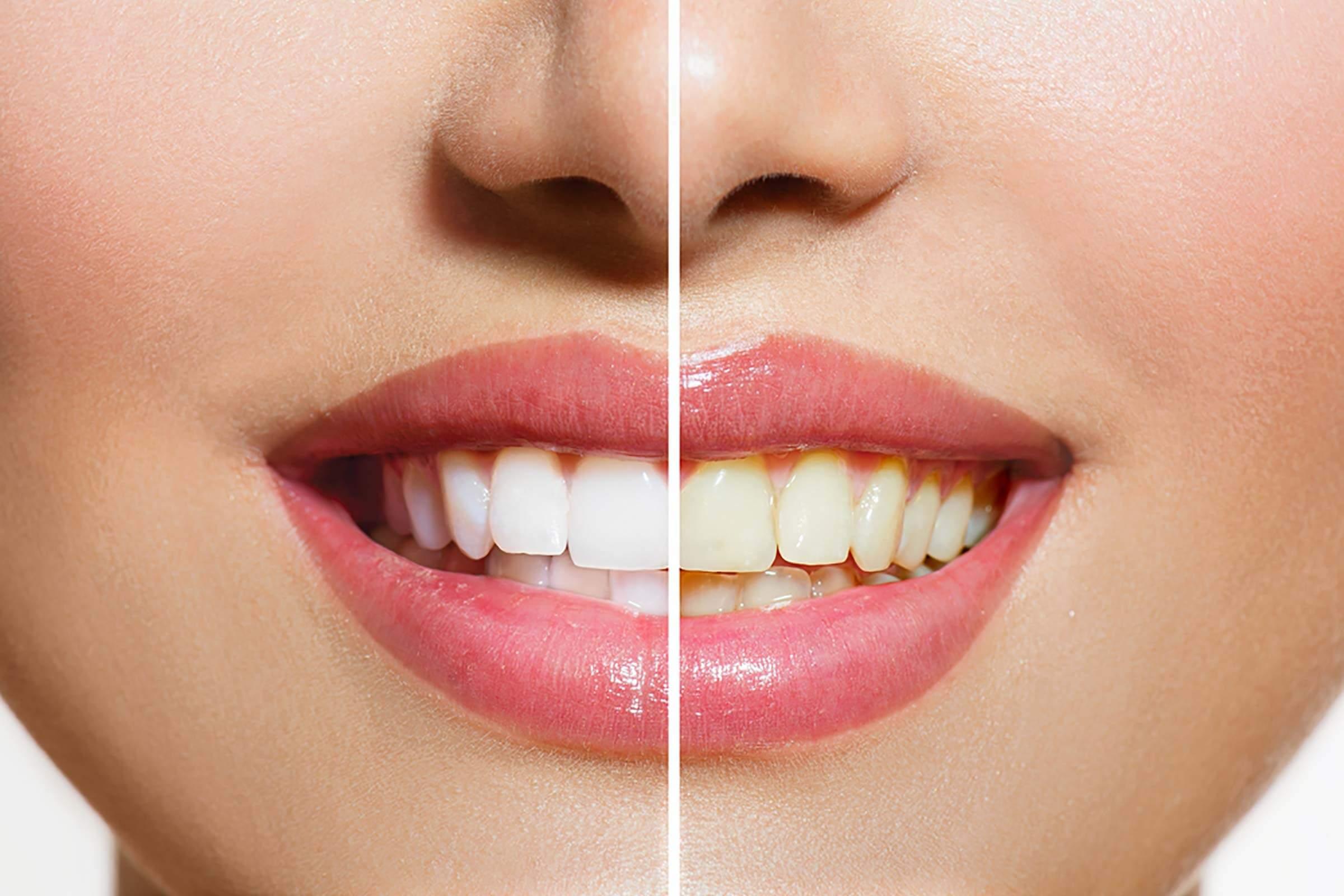 歯が黄ばむ理由